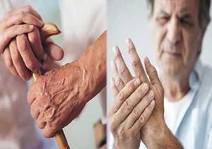 Parkinson hastalığı hakkında bilmeniz gereken her şey